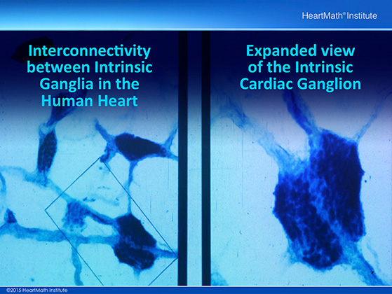 Little Brain in the Heart-Neuron-slide-1