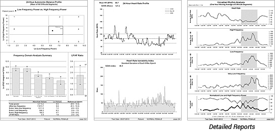 HRV Detailed Reports