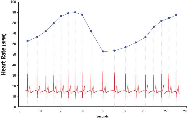 Chapter 03 heart rate variability heartmath institute heart rate variability ccuart Gallery