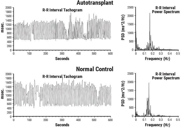 Heart Rhythms Generated by a Transplanted Heart