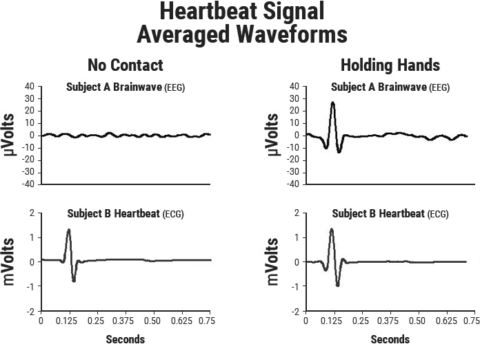 Heartbeat Signal-Averaged Waveforms