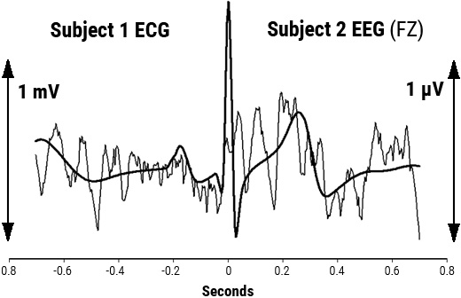 Overlay of signal-averaged EEG and ECG
