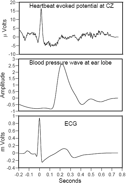 Heartbeat Evoked Potential